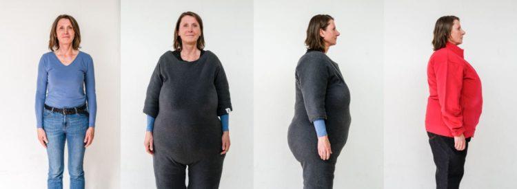 Adipositasanzug PerspektivenPioniere Verwandlung Frau