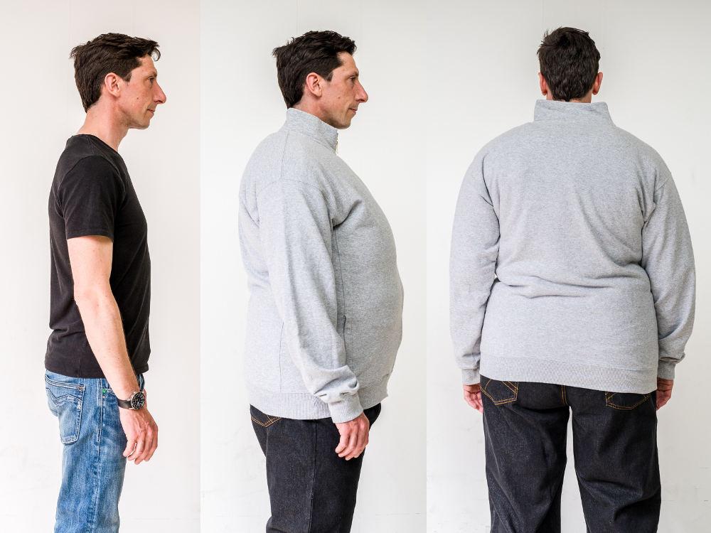 Adipositasanzug PerspektivenPioniere Verwandlung von dünn zu dick